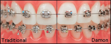 brackets Traditionnels Vs auto ligaturants