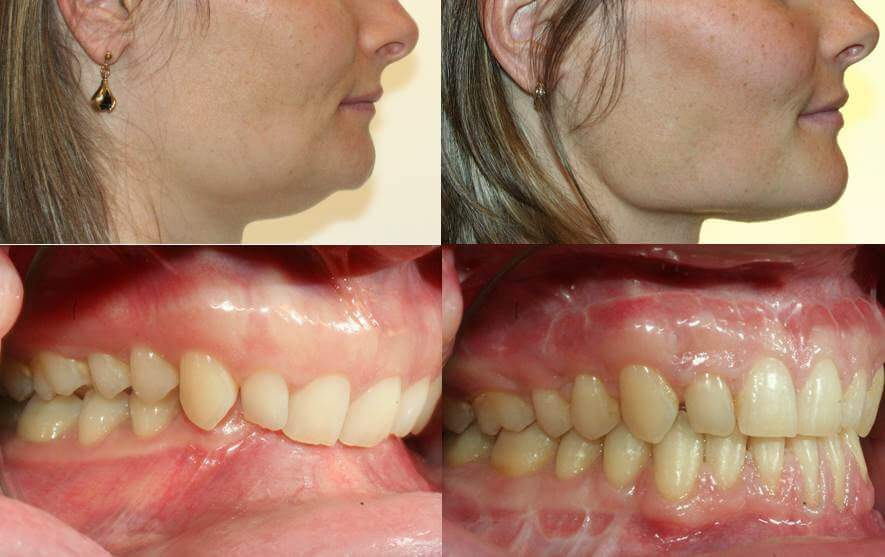 Cas d'une patiente en orthodontie adulte souffrant d'une supraclusion orthodontique