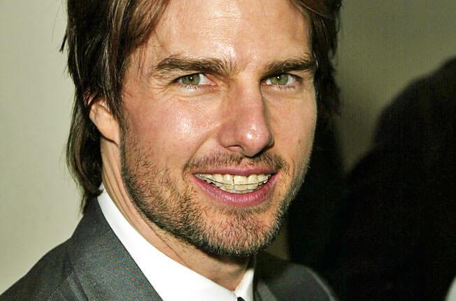 Tom Cruise avec des appareils dentaires céramiques