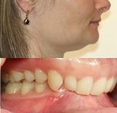 Orthodontie adulte - cas d'une supraclusion