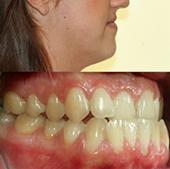 Orthodontie adulte - patiente présentant une prognathie