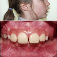 Orthodontie enfant : patiente avec dents de lapin
