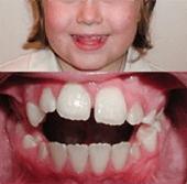 Orthodontie enfant - espace entre les dents