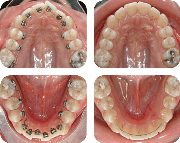 Orthodontie chevauchement