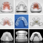 Types d'appareils dentaires en orthodontie