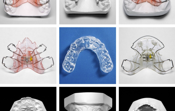Types d'appareils dentaires en orthodontie